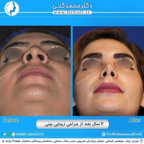 جراحی زیبایی بینی 228