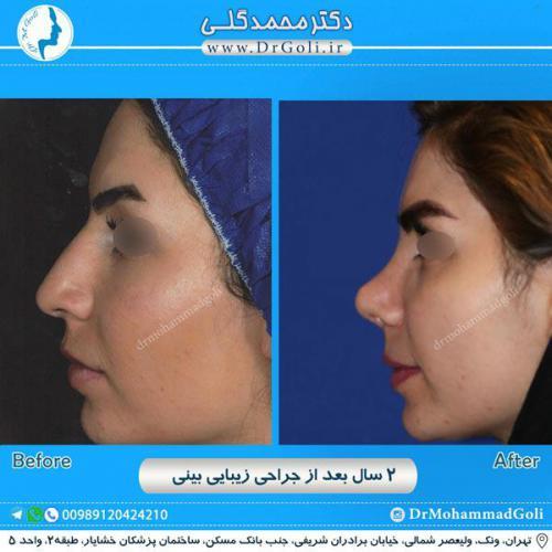 جراحی زیبایی بینی 230