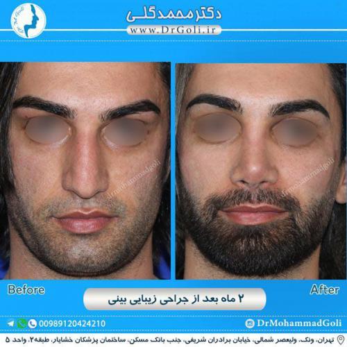 جراحی زیبایی بینی 231