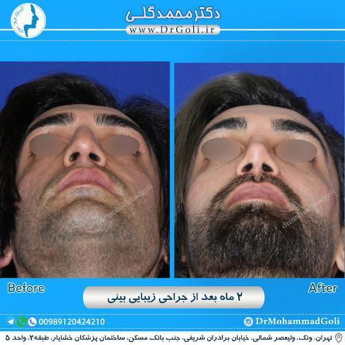 جراحی زیبایی بینی 233