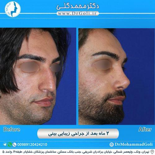 جراحی زیبایی بینی 234
