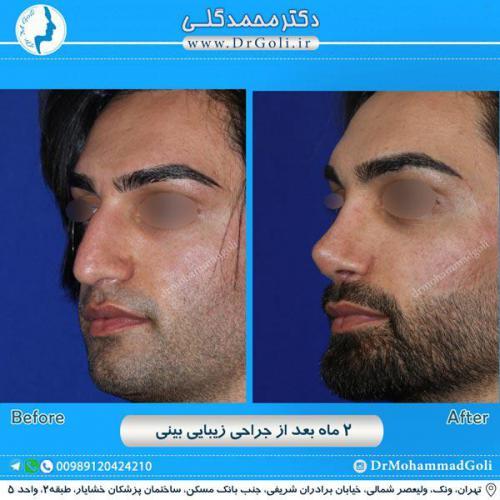 جراحی زیبایی بینی 235