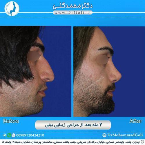 جراحی زیبایی بینی 236