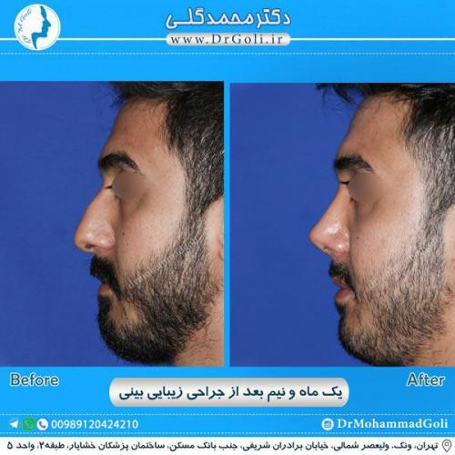 جراحی زیبایی بینی 242