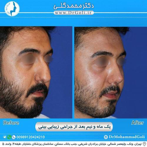 جراحی زیبایی بینی 243