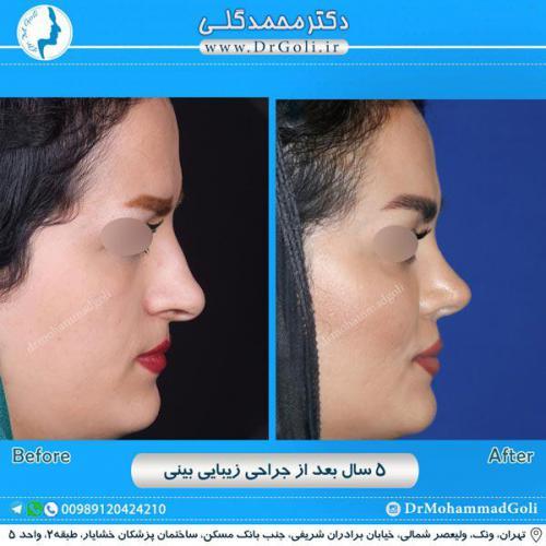 جراحی زیبایی بینی 246