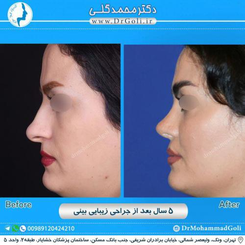جراحی زیبایی بینی 247