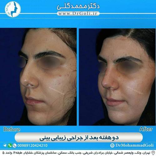 جراحی زیبایی بینی 342