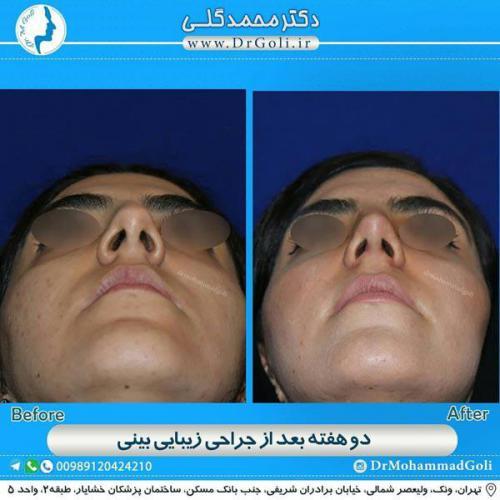 جراحی زیبایی بینی 344