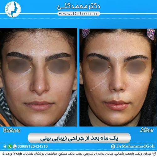 جراحی زیبایی بینی 345