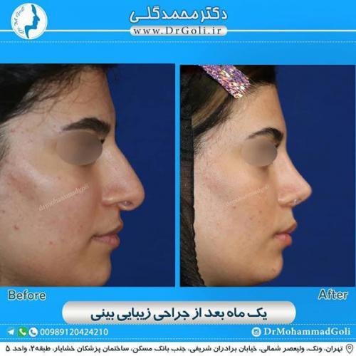 جراحی زیبایی بینی 347