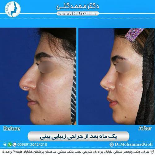 جراحی زیبایی بینی 349