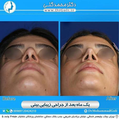 جراحی زیبایی بینی 351