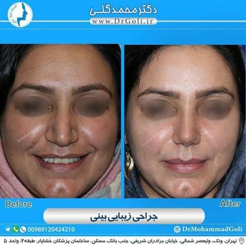 جراحی زیبایی بینی 352