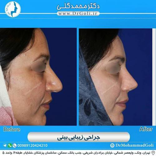 جراحی زیبایی بینی 353