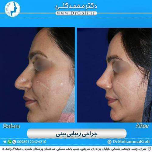 جراحی زیبایی بینی 355