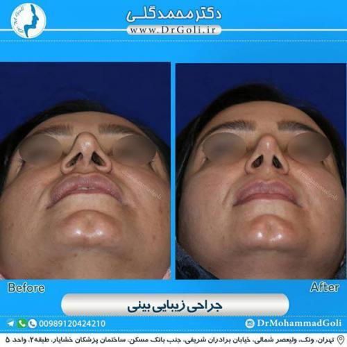 جراحی زیبایی بینی 357