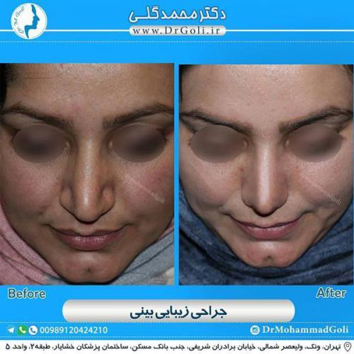 جراحی زیبایی بینی 358