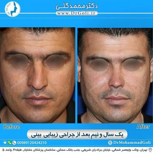 جراحی زیبایی بینی 359