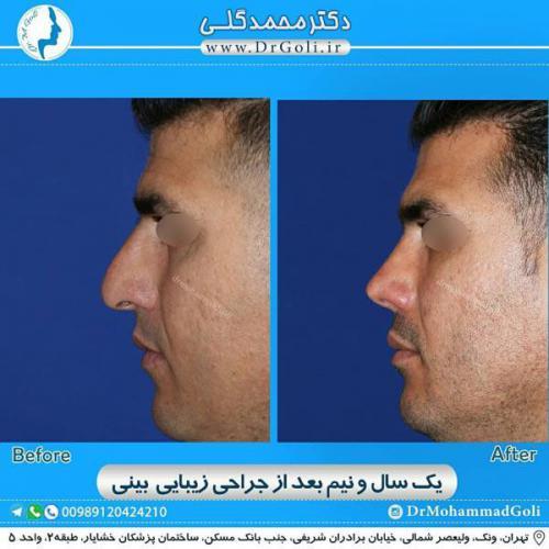 جراحی زیبایی بینی 361