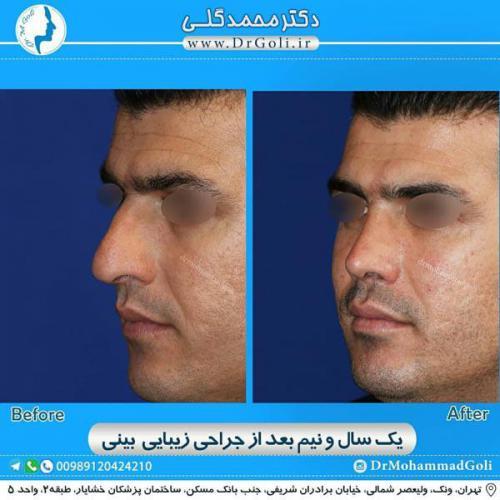 جراحی زیبایی بینی 362