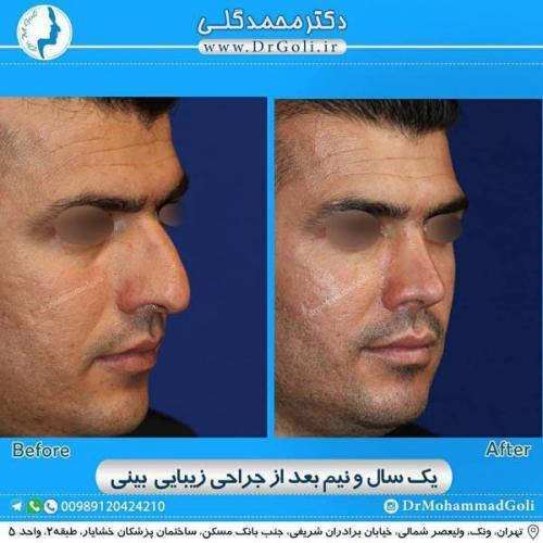 جراحی زیبایی بینی 363