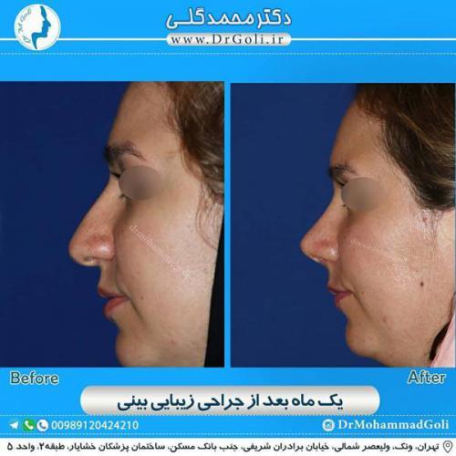 جراحی زیبایی بینی 366