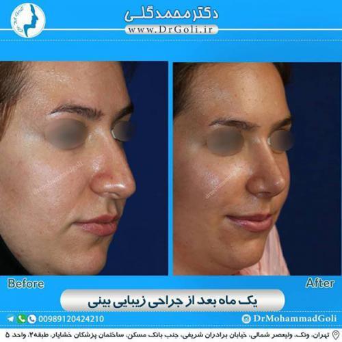 جراحی زیبایی بینی 367