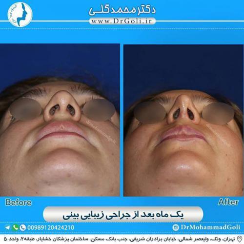 جراحی زیبایی بینی 369
