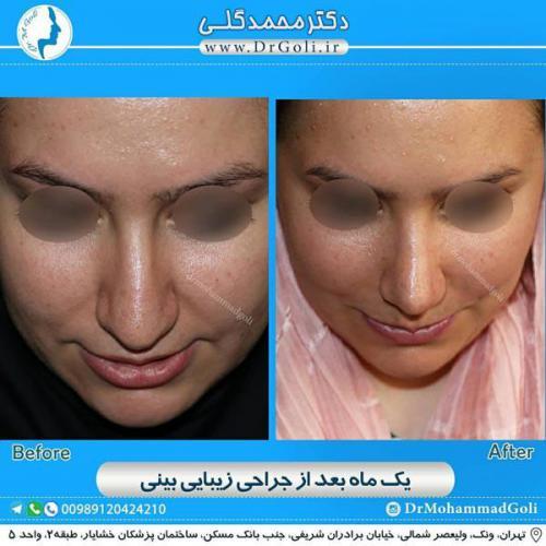 جراحی زیبایی بینی 370